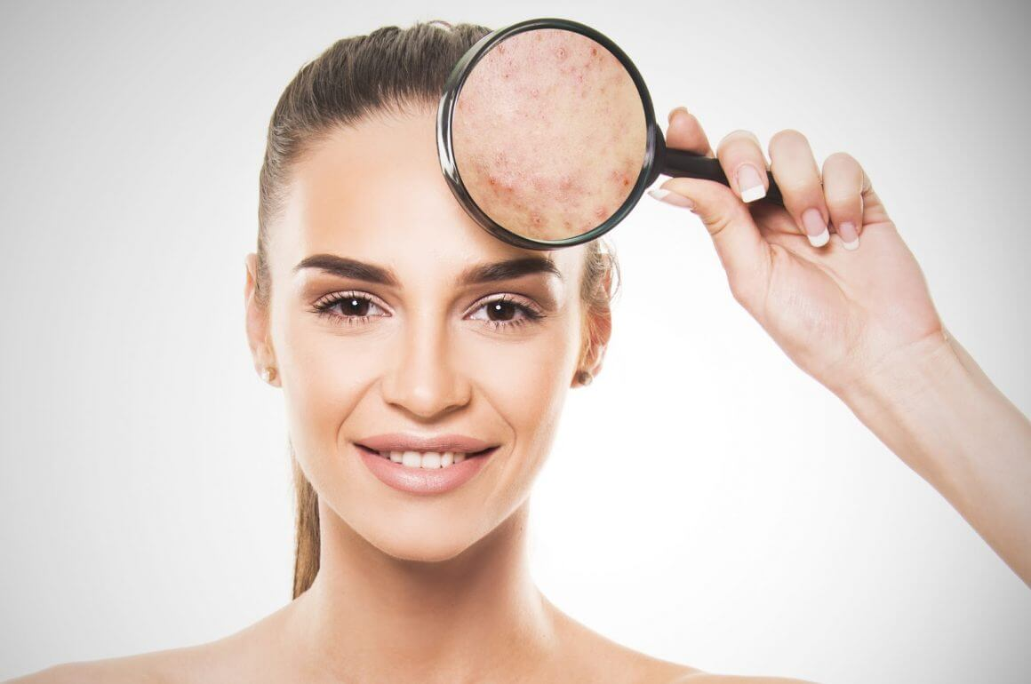 Skin Whitening Products That Help Women With Hyperpigmentation