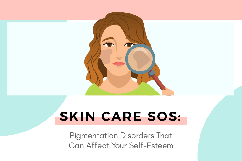 Skin Care SOS: Pigmentation Disorders That Can Affect Your Self-Esteem
