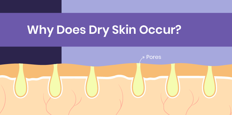 why does dry skin occur