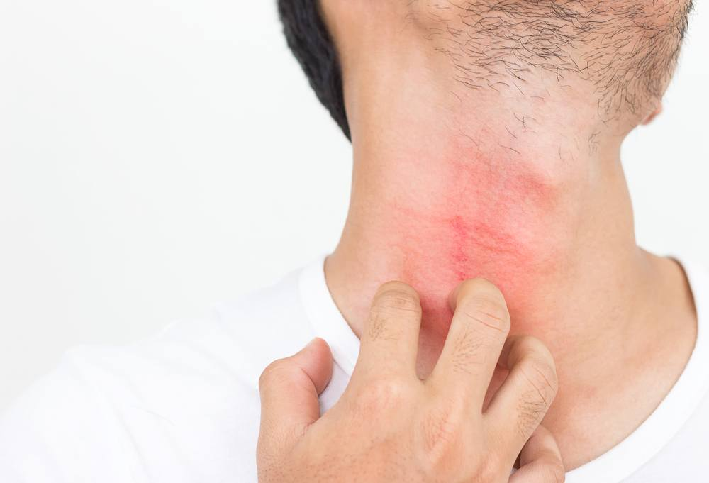 Easy Ways to Get Rid of Razor Bumps on Your Neck